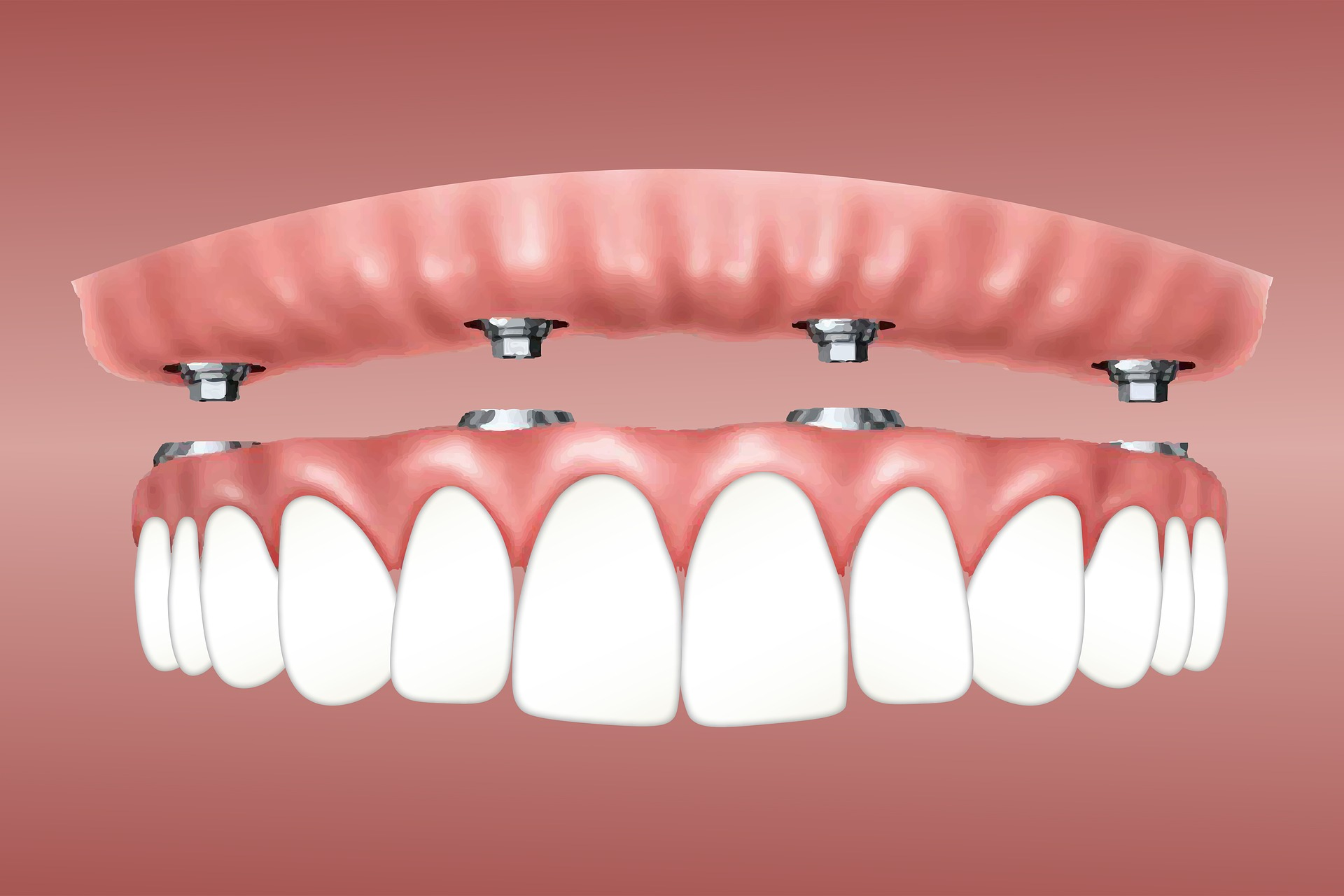 How To Care For Your Aligner?